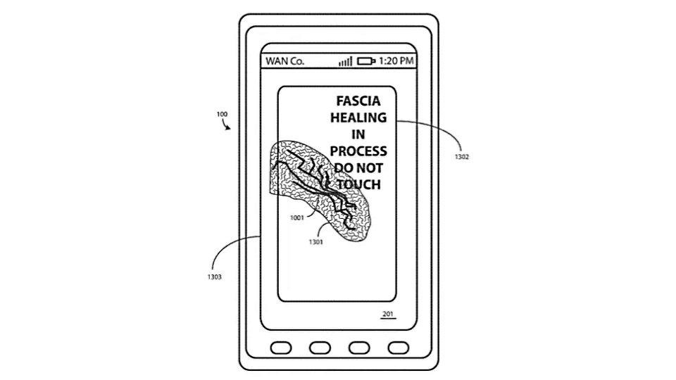 selbstheilendes display motorola patent gegen kratzer bei smartphones gamestar. Black Bedroom Furniture Sets. Home Design Ideas