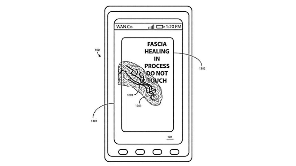selbstheilendes display motorola patent gegen kratzer. Black Bedroom Furniture Sets. Home Design Ideas